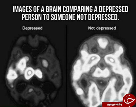 تصویری عجیب از مغز افراد افسرده